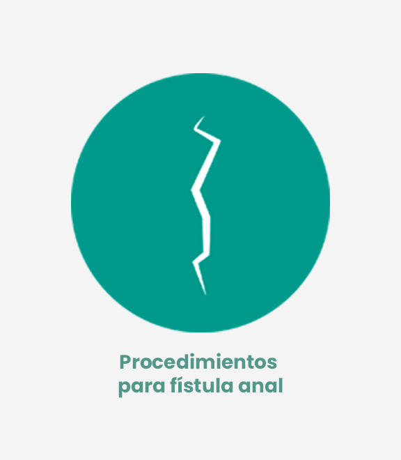 Fístula anal (coloproctología)