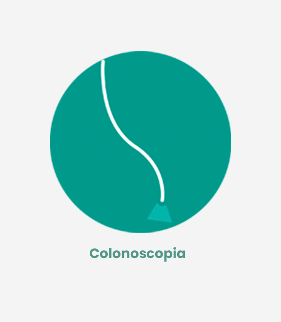 Colonoscopia (coloproctología)